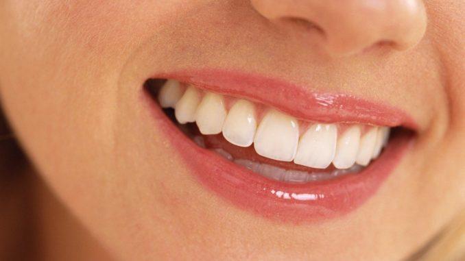 traitement de blanchiment de dents
